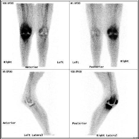 Austin orthopedic surgeons | orthopedist | texas orthopedics
